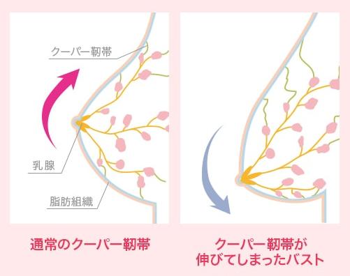 通常と伸びたクーパー靭帯の比較