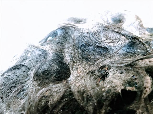 カダソン,KADASON,脂漏性皮膚炎,スカルプシャンプー,フケ,かゆみ,シャンプーしている頭